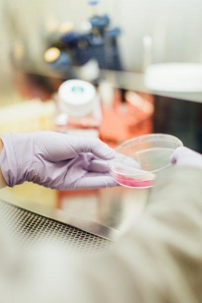 bacteria in petridish and antibiotics