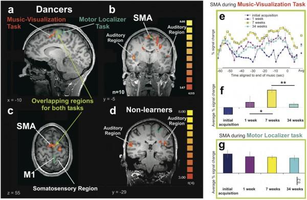 Brain scan of ballet dancers